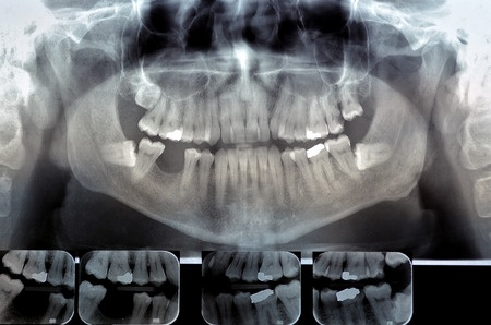 dental radiology – dental studies institute